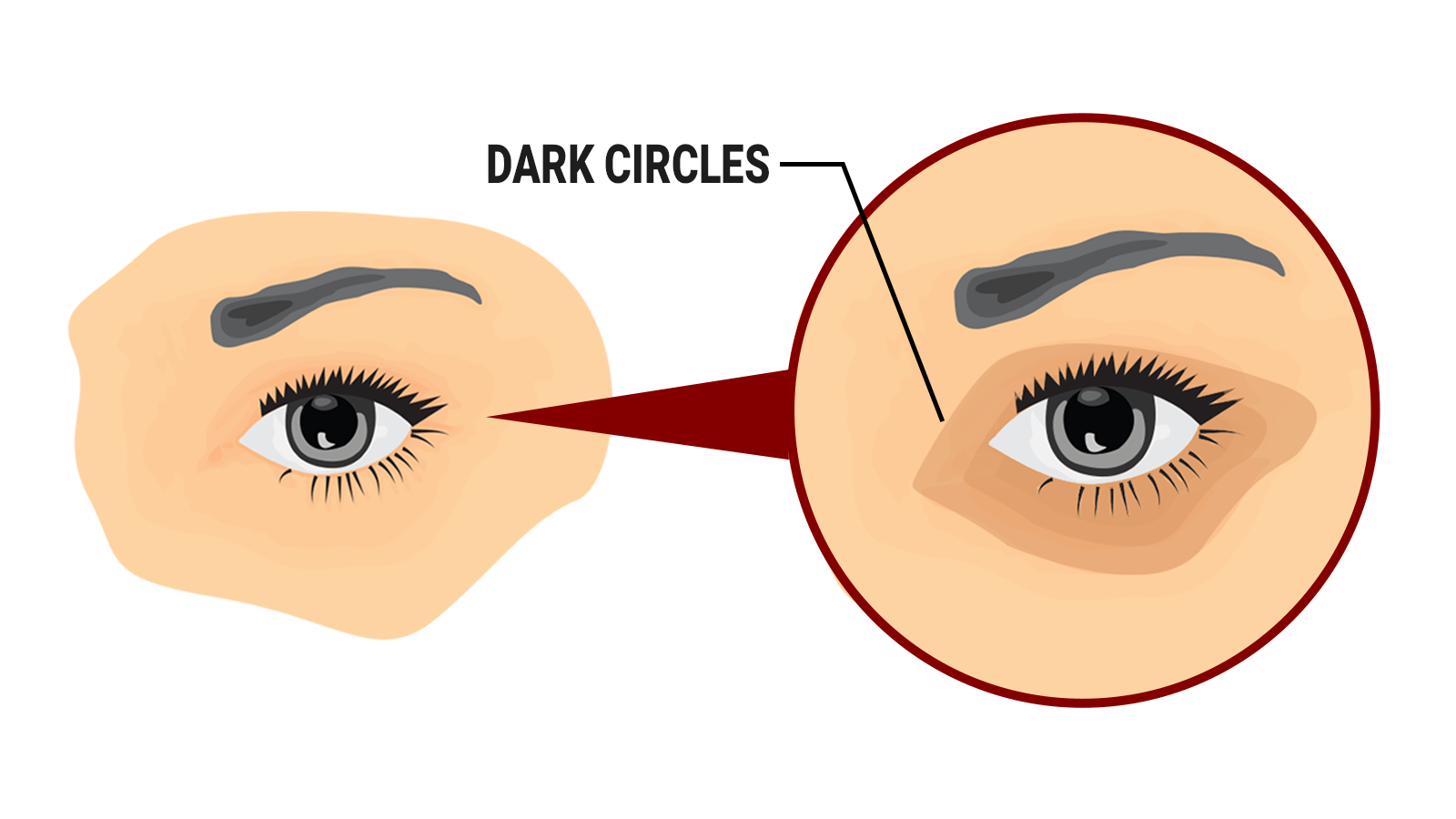 How To Remove Dark Circles Under Eyes Naturally At Home